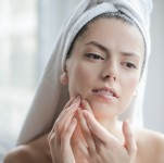 Use Face Mapping To Combat Acne