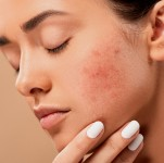 How Dermatologists Control Cystic Acne
